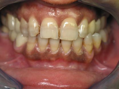 Зубы после приема антибиотиков